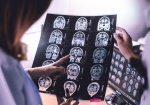 Increased risk of dementia after AKI
